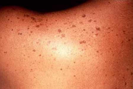 Manchas en la piel: Cuando un lunar puede poner en riesgo nuestra salud