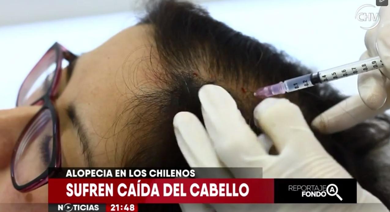 La alopecia de Pilar puede tener solución