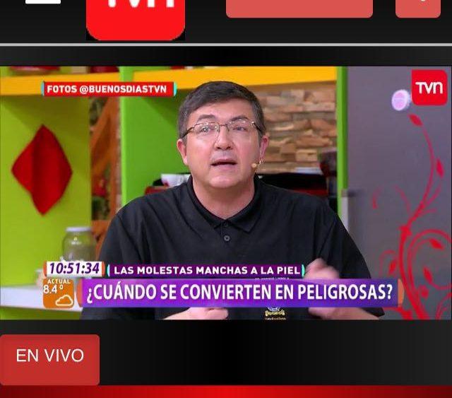 TVN- Muy Buenos Días – Todo sobre las Manchas en la piel